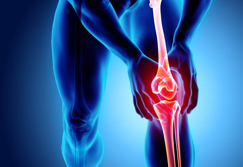 Osteoarthritis (OA) Knee